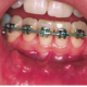Orthodontic_emergencie_sores