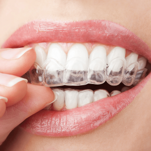 Invisalign clear aligner orthosmile orthodontics in paphos