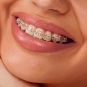 clear brackets ceramic brackets orthosmile orthodontics in paphos