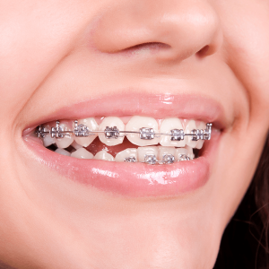 metallic brackets orthosmile orthodontics in paphos