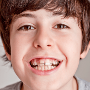 removable appliance orthosmile orthodontics in paphos
