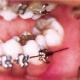 Orthosmile_protruding_wire